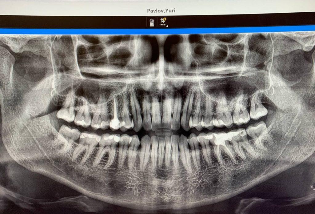 Все 32 зуба до удаления